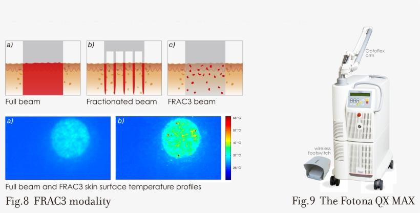 готовые протоколы работы на лазер фотона предлагаем как эксклюзивные